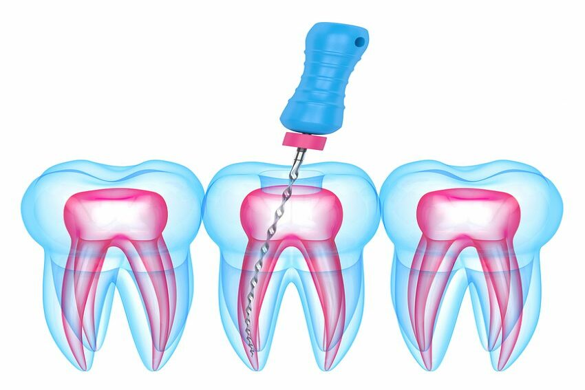 bigstock-D-Render-Of-Teeth-With-Endodo-306059836-e1613342892154